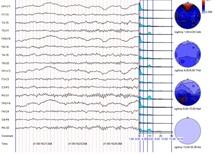 Electroencefalograma Mapeo Cerebral Ciudad Satélite Naucalpan