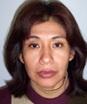 Dra. Glenda Rosario Escalaya Advincula