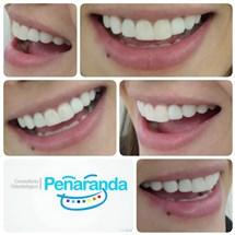 Consultorio Odontológico Peñaranda
