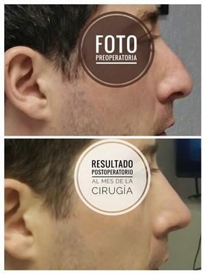 Dr. Joaquín Archibaldo Hope Guerrero - gallery photo
