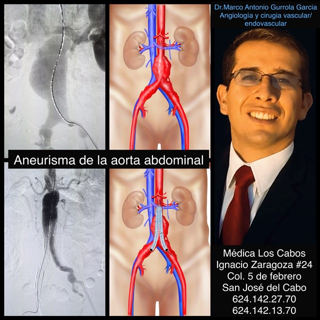 Dr. Marco Antonio Gurrola García - gallery photo
