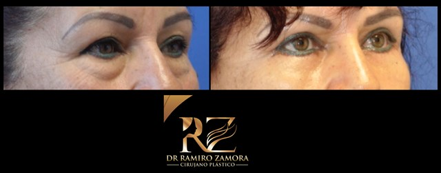 Dr. Ramiro Zamora Rodríguez - gallery photo