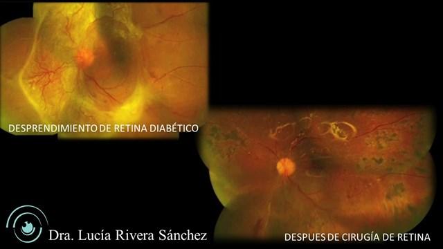 Dra. Lucía Rivera Sánchez - gallery photo