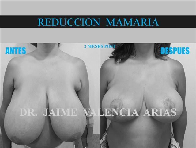 Dr. Jaime Valencia Arias - gallery photo